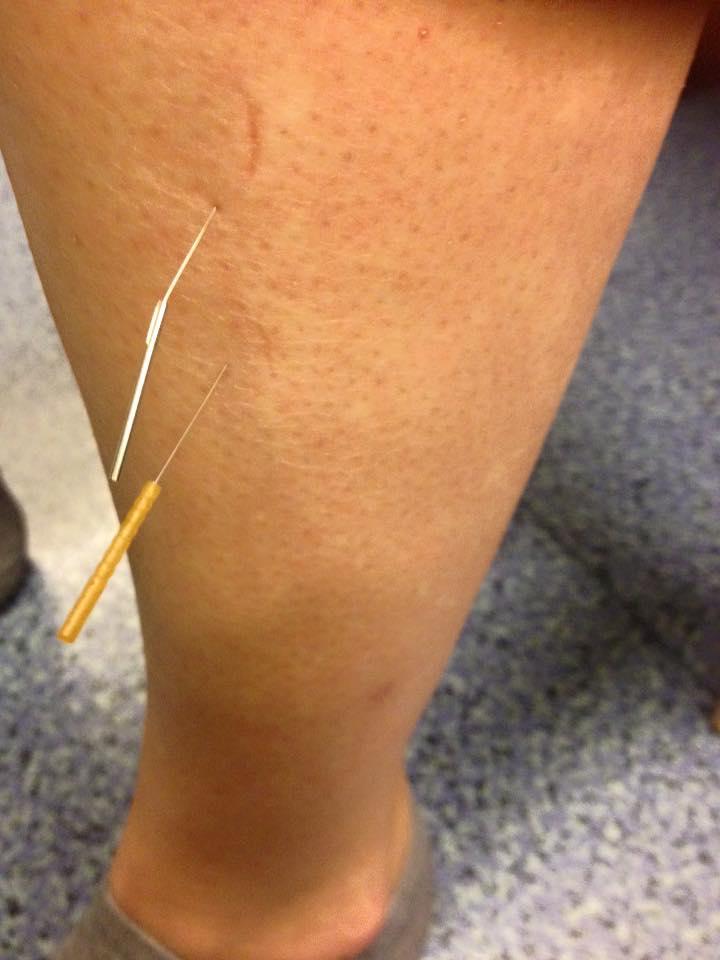 acupunctuur been schouder